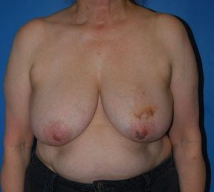 front view of patient 9 pre breast reconstruction